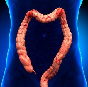 Remedios Naturales Para la Colitis Ulcerosa